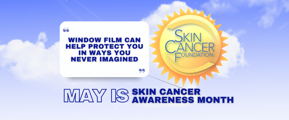 May Is Skin Cancer Awareness Month - See How Window Film Helps - Window Film and Window Tinting Services in Costa Mesa, California